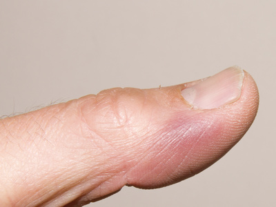 Im finger knubbel Knubbel Unter