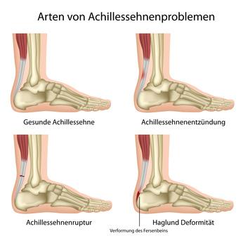 Erkrankungen der Achillessehne