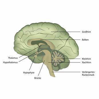 Что такое кровоизлияние в мозг