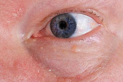 Augenherpes - Ursachen, Symptome & Behandlung   MedLexi.de