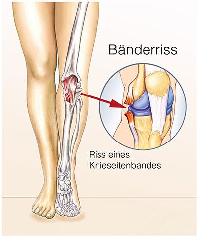 Bänderriss Knie