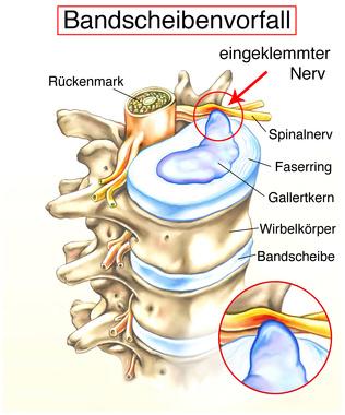 Bandscheibendegeneration – Ursachen, Symptome & Behandlung | MedLexi.de