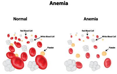 Ausgewogene Ernährung zur Bekämpfung von Anämie