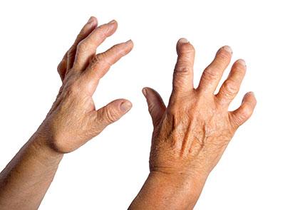 Arthrose der Hand- und Fingergelenke