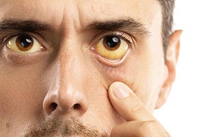 Холестаз - причины, симптомы и лечение