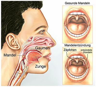 Mandeln eiter entfernen von Mandelsteine behandeln/entfernen