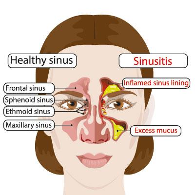 Chronische Sinusitis - Ursachen, Symptome & Behandlung