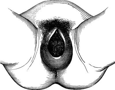 Nach schmerzen scheidenriss geburt sex Sex nach