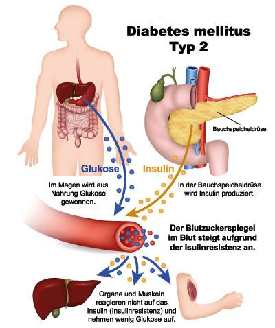 Gastroparese Symptome