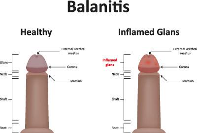 blut oder fleisch penis
