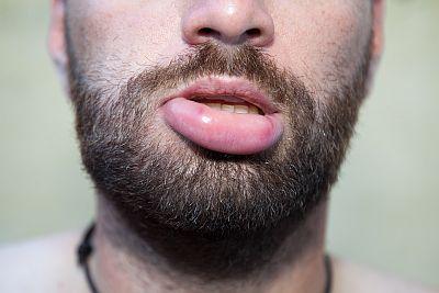 Angeschwollen unterlippe Dicke Lippe?