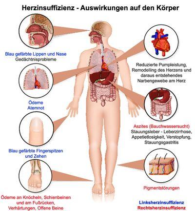 Symptome Bei