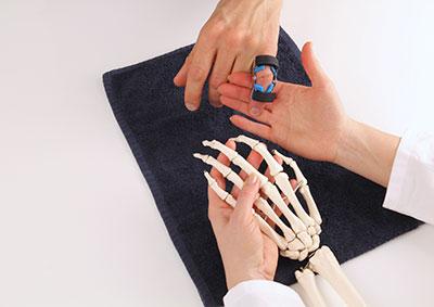 Kapselriss finger dauer | Kapselriss in Finger und Co