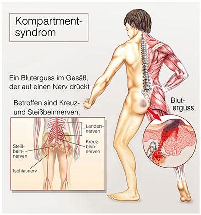 Bluterguss muskelfaserriss Muskelfaserriss und