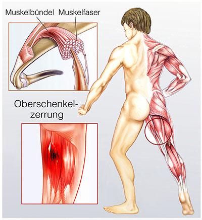 muskelfaserriss oberschenkel therapie