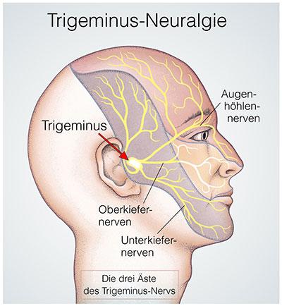 Trigeminusnerv gereizt symptome