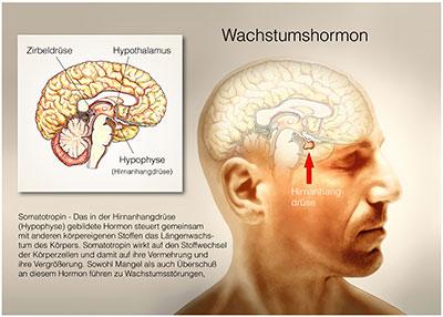 erwachsene wachstumshormon mangel symptome