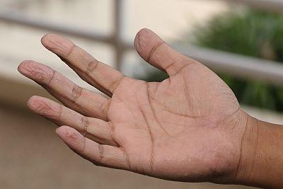 Haut an den fingerkuppen löst sich