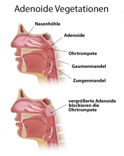 adenoid hypertrophy nasal steroids