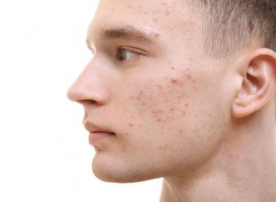 Symptome von Erwachsenen Akne