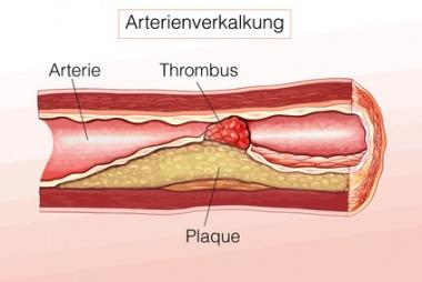 Die Cremes für die Prophylaxe gribka der Beine