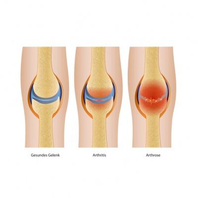 Was ist der Unterschied zwischen Arthrose und Arthritis?