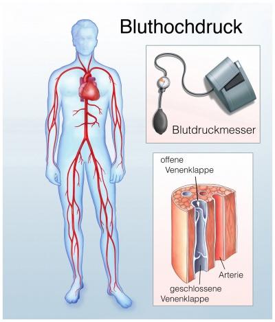 Bluthochdruck Wikipedia