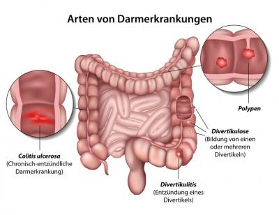 Darm – Aufbau, Funktion & Krankheiten | MedLexi.de