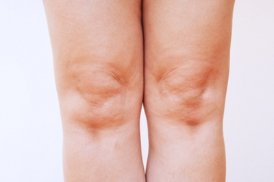 Homöopathie gegen Gelenkentzündung