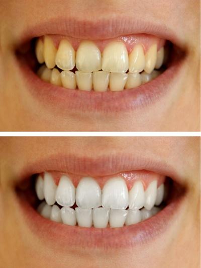 Tun was schwarze zähne Schwarze Zähne