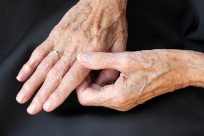 handgelenkschmerzen beim abknicken