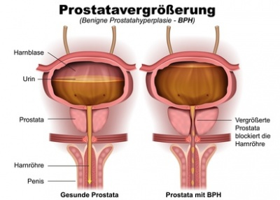 Ursache von vaginalem ppain