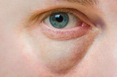 Auge ausschlag unterm Ekzem