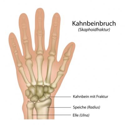 Kahnbeinbruch – Ursachen, Symptome, Behandlung, Komplikation, Vorbeugen