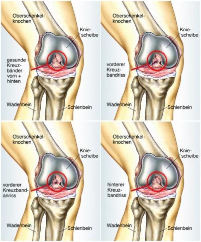 Das Kniegelenk - Zum Beugen und Strecken des Beines
