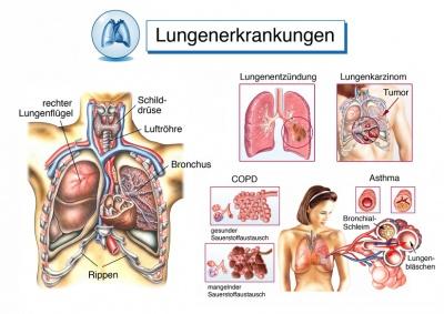 ausheilen einer pneumonie