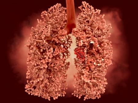 lungenadenokarzinom satadium 4 welche chance