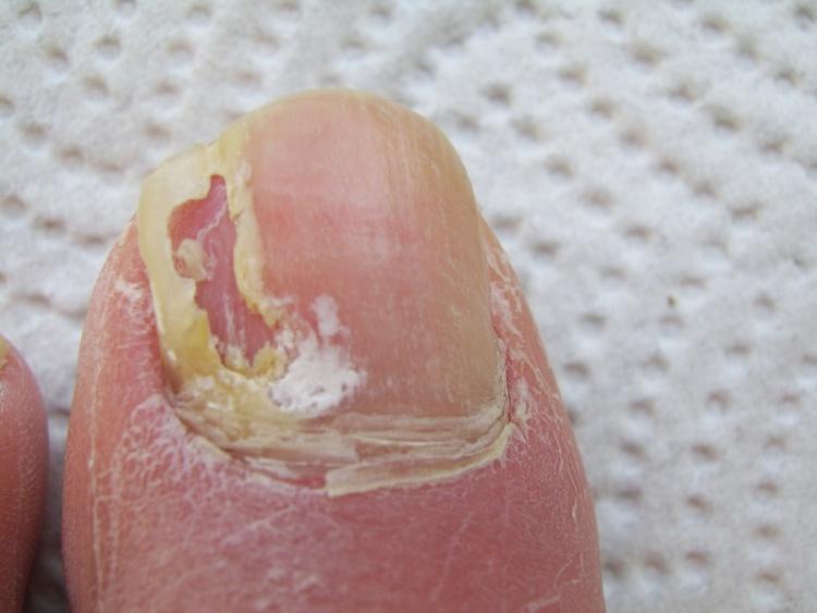 Die Präparate für die Behandlung der Nägel von der Schichtung