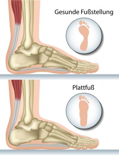 Plattfuß – Ursachen, Symptome & Behandlung   MedLexi.de