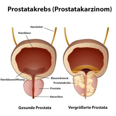 symptome prostatakrebs mann