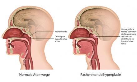 Knoten Zunge Seitlich