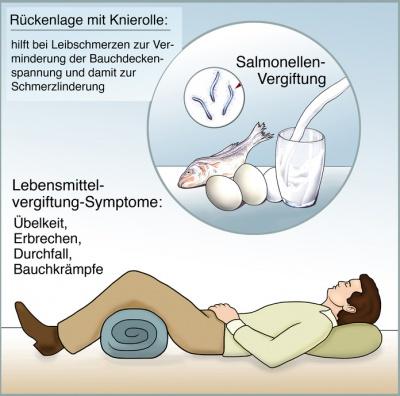 Salmonellenvergiftung Salmonellose Ursachen Symptome