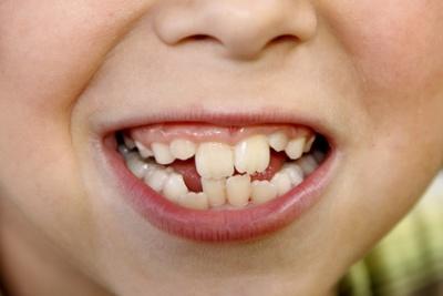 schmerzen wo kein zahn mehr ist