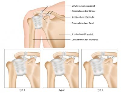 Schulterverrenkung – Ursachen, Symptome & Behandlung | MedLexi.de