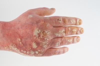Gribok des Nagels der Arzt zu behandeln