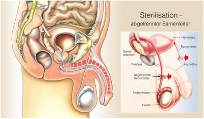 Sterilisation Frau Nebenwirkungen Gewichtszunahme