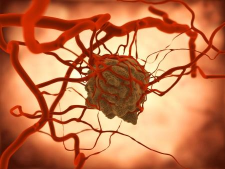 haben jeder mensch tumore