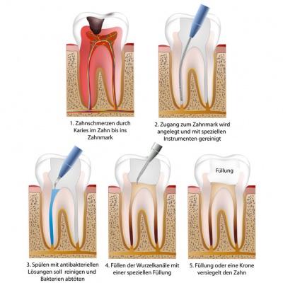 Воспаление корней зубов - причины, симптомы и лечение